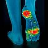 Индивидуальные ортопедические стельки Stopa + диагностика, фото 5