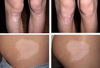 Витасан, крем усиливающий пигментацию (витилиго, белые пятна на коже, меланин, пигментация)