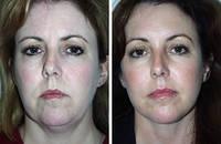 Миостимуляция лица | аппаратная косметология одесса, фото 1