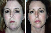Миостимуляция лица   аппаратная косметология одесса
