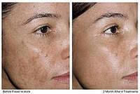 Пилинг Одесса | омоложение кожи лица, фото 1