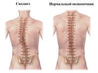 Лечение и профилактика сколиозов, и других нарушений осанки