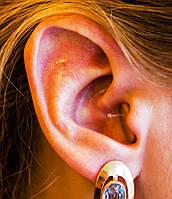 Цифровой внутриушной аппарат для коррекции слуха