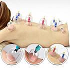 ОПТ Вакуумні антицелюлітні банки для масажу KL набір 6 шт YS 0006 з насосом, фото 3