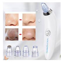 Вакуумный очиститель пор Derma Suction для очистки пор лица со сменными насадками 2 режима, фото 3