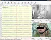 Программа видеонаблюдения при длительной регистрации ЭЭГ Нейрон-Спектр-Видео Спектромед