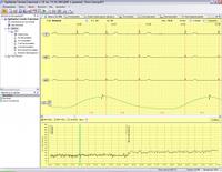 Программа и оборудувание для анализа ВРС Поли-Спектр-Ритм Спектромед