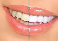 Отбеливание зубов УЗ+AirFlow