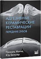 Адгезивні керамічні реставрації передніх зубів - Маньє П., Бельсер Ю.