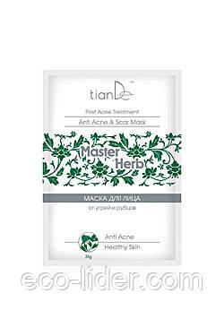 Маска для обличчя від вугрів і рубців Master Herb, TianDe 35 р.