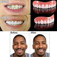 Виниры для зубов Perfect Smile Veneers, отбеливание зубов, вставные зубы, фото 7