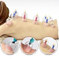 """Антицелюлітні масажні банки набір з 24шт """"KangZhu"""" + насос, масажер від целюліту, фото 6"""
