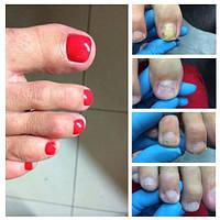 Востановление - протезирование  ногтей Харьков