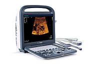 Портативный ультразвуковой сканер SonoScape S2 в комплекте с датчиком