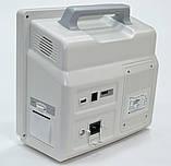 """Монитор пациента star 8000F (""""БИОМЕД"""" ВМ800А сенсорный дисплей), фото 3"""