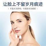Крем для лица глубоко увлажняющий VENZEN Hyaluronic Acid Moisturizing Cream с гиалуроновой кислотой, 50 г, фото 4