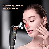 Вакуумный очиститель кожи и пор Medica+ Skincleaner 9.0 black (Япония), фото 5