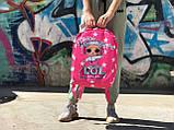 Шкільний рюкзак Лол, фото 4