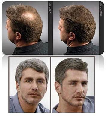СРЕДСТВО ОТ ОБЛЫСЕНИЯ. Серия для востановления роста волос Master Herb