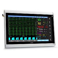 Монитор пациента ЮМ 300 - 20