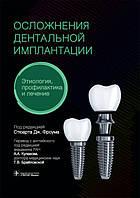 Дж. Фроум Ускладнення дентальної імплантації. Етіологія, профілактика і лікування