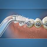 Ортодонтическая насадка OD-100E, фото 2