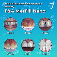 Клинический случай использования цемента MerFill Nano