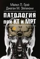Грэй М.Л. Патология при КТ и МРТ
