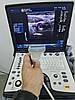 GE Logiq E (2013) з возом і принтером + 3 датчика портативний Апарат УЗД, фото 6