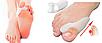 Гелеві накладки Valgus Pro для корекції великих пальців стопи | Напальник від кісточки на нозі Вальгус Про, фото 4