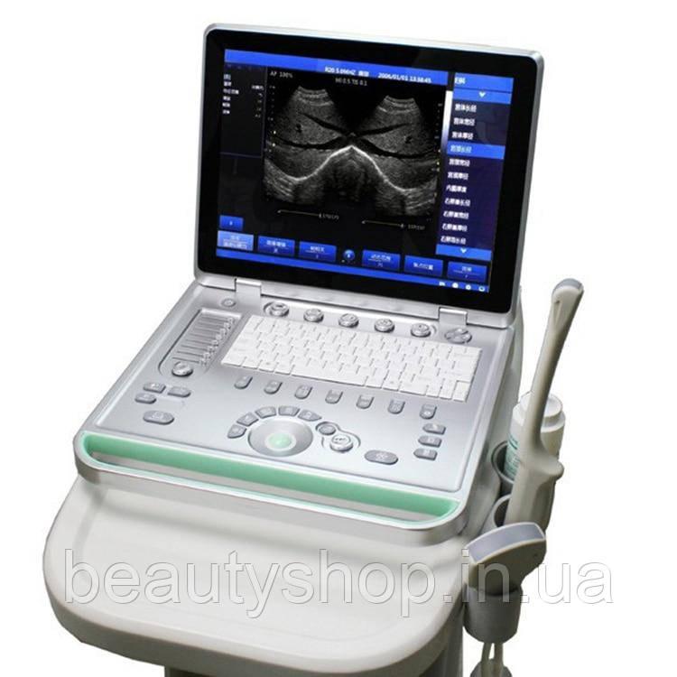 15 дюймовий ноутбук ультразвуковий сканер arm, безкоштовна доставка