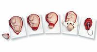 Модель процесса родов, 5 стадий