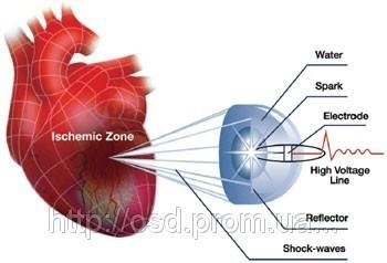 Ударно-волновая терапия сердечно-сосудистых заболеваний Кардиоспек (Cardiospec)