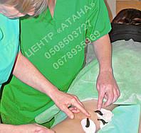 Интенсивные курсы гирудотерапии (лечение пиявками).Харьков