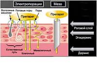 Безинъекционная мезотерапия (электропорация)