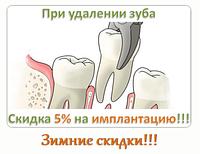При удалении зуба, скидка на имплантацию ― 5%