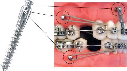 Мини-импланты ортодонтические