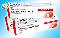 YES STAR — D-SPEED, рентгеновская плёнка для стоматологии, 100 кадров