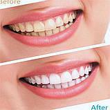 Отбеливатель зубов Ultra Gel Whitening, отбеливающие полоски для зубов, фото 2