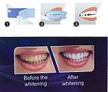 Отбеливатель зубов Ultra Gel Whitening, отбеливающие полоски для зубов, фото 6