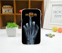 Cиликоновый чехол бампер с рисунком для Samsung Galaxy J2 J200 Рентген