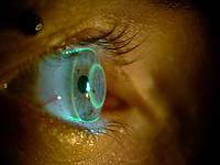 Таможенное оформление контактных линз | Импорт контактных линз с уплатой НДС с лекарственных средств по ставке 7% |