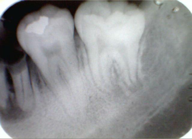 Стоматологическая пленка