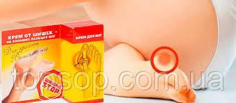 Крем от шишек на больших пальцах