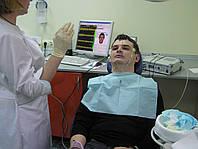 """Электромиограф для стоматологических исследований """"Синапсис"""""""