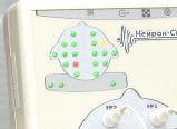 """8-канальный компьютерный электроэнцефалограф """"Нейрон-Спектр-1"""", фото 4"""