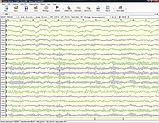 """8-канальный компьютерный электроэнцефалограф """"Нейрон-Спектр-1"""", фото 5"""