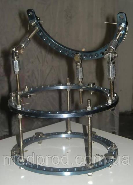Апарат Ілізарова d 140, травматологічний інструментарій з нержавіючої сталі