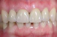 Протезирование зубов - металлокерамика Noritake