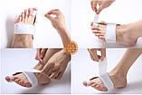 Лечение косточки на ноге - профессиональный фиксатор, фото 3
